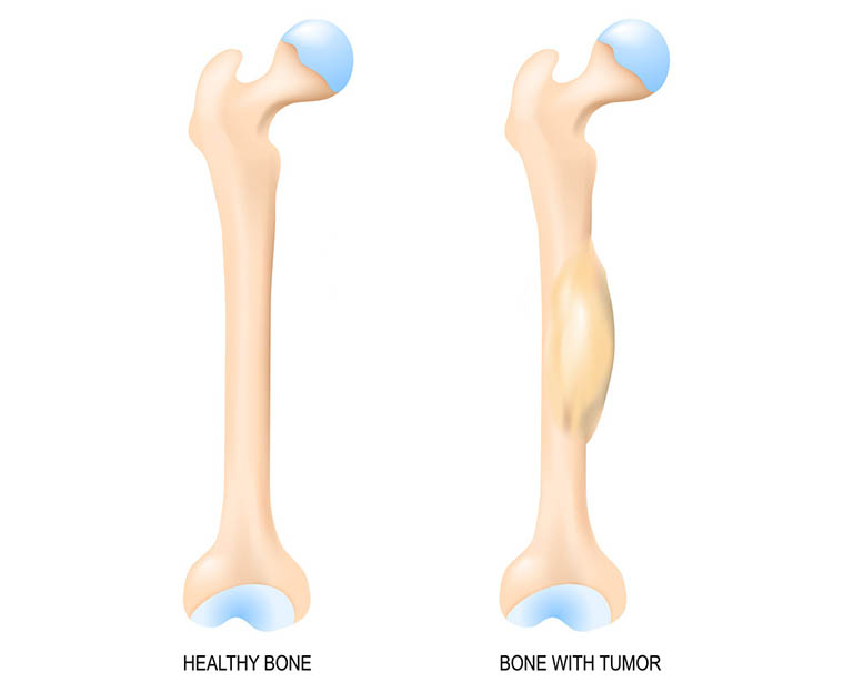 Các dạng phụ của Sarcoma xương