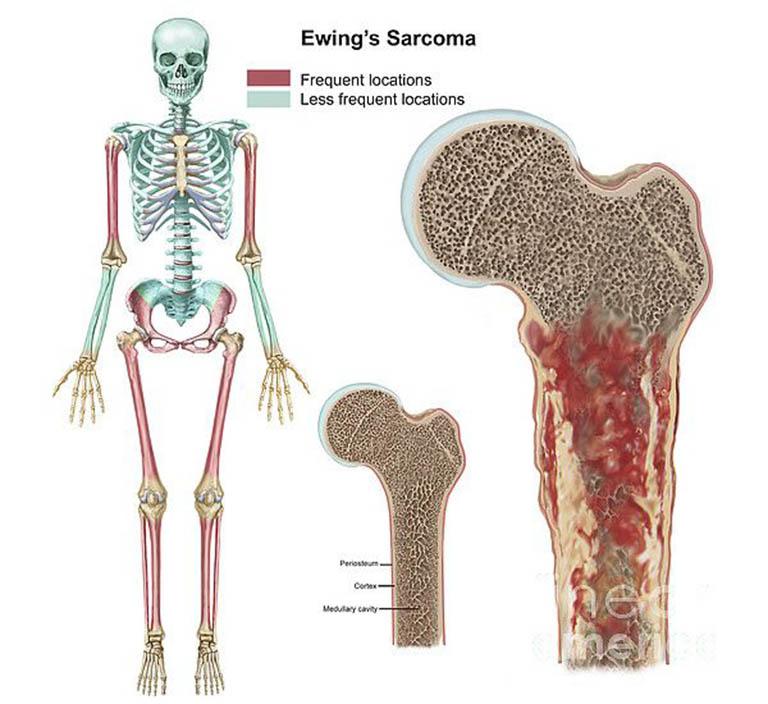 Sarcoma Ewing