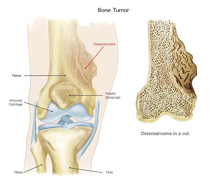 Những dạng phụ của Sarcoma xương