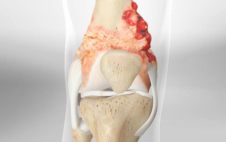 Sarcoma xương