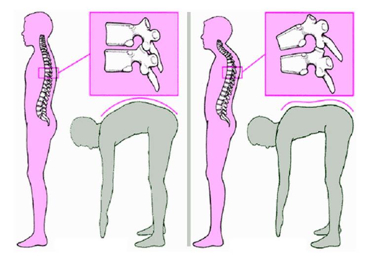 Bệnh Scheuermann (thoái hóa xương sụn cột sống)