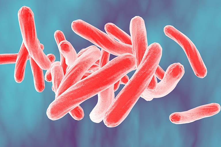 Trực khuẩn lao Mycobacterium tuberculosis là nguyên nhân chính gây bệnh lao xương
