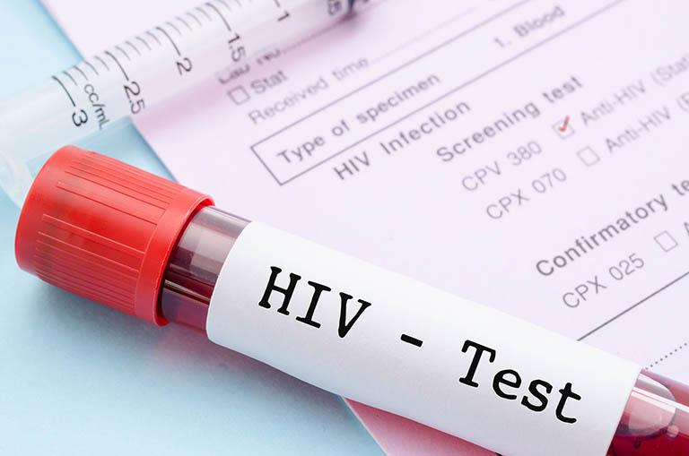 Vi khuẩn lao dễ dàng lây lan đến xương ở những bệnh nhân bị HIV/AIDS