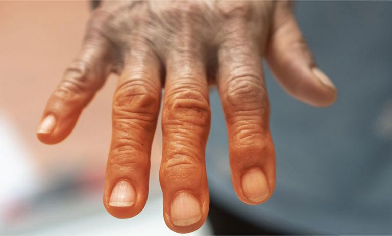bệnh lupus ban đỏ hệ thống có nguy hiểm không