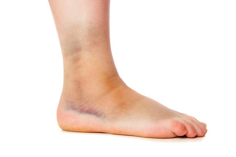 Bong gân dễ xảy ra ở mắt cá chân