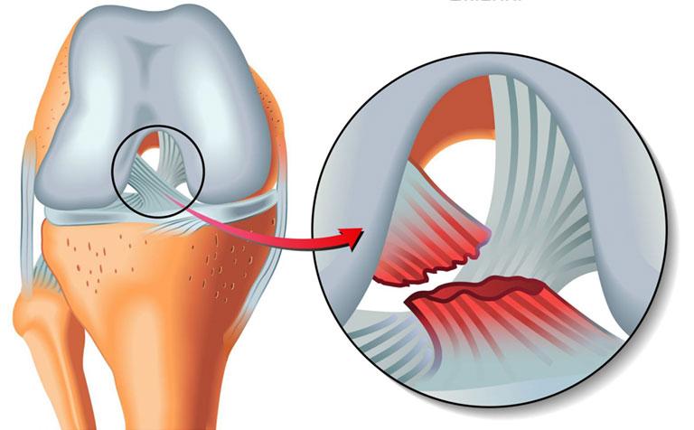 đau đầu gối là bệnh gì
