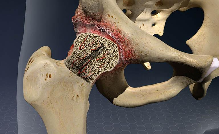 Các giai đoạn của bệnh hoại tử vô mạch chỏm xương đùi