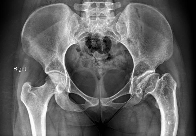 Chụp cộng hưởng từ MRI