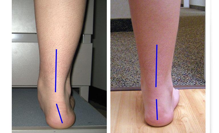 Tác hại của bàn chân bẹt