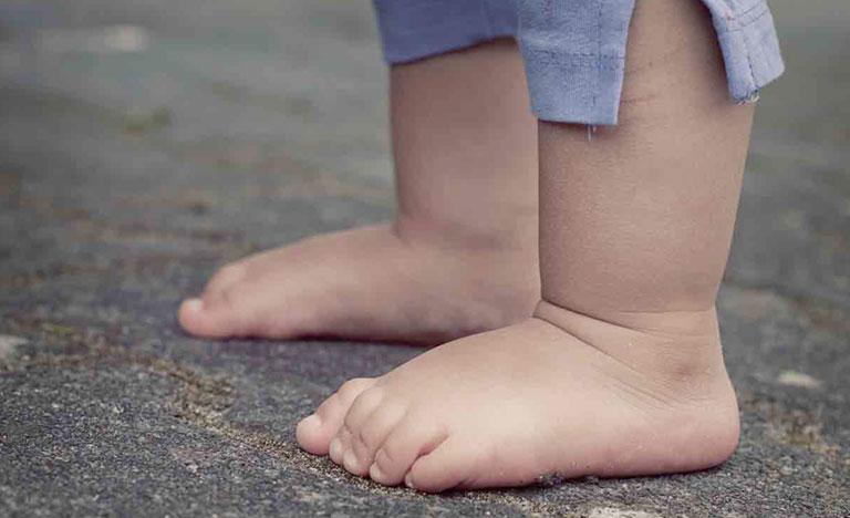 Bàn chân bẹt ở trẻ em