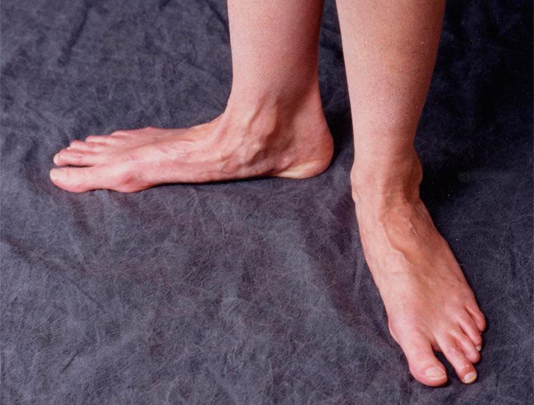 Hậu quả của bàn chân bẹt