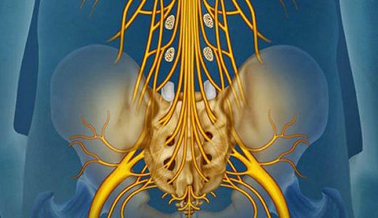 Hội chứng chùm đuôi ngựa (Cauda equina Syndrome)