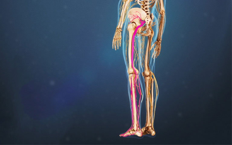 dấu hiệu hội chứng cơ hình lê