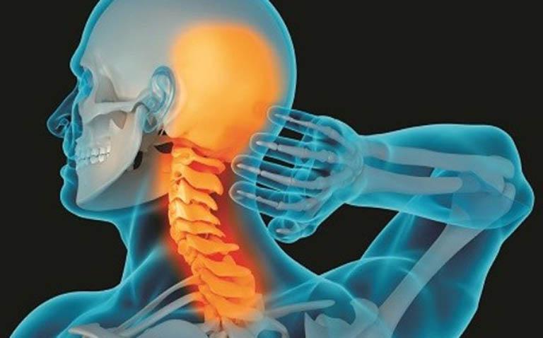 Nguyên nhân gây hội chứngcổ - vai - cánh tay