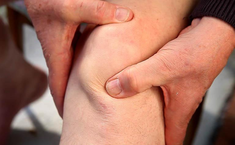 Hội chứng đau bánh chè - đùi thường chuyển sang chấn thương mãn tính