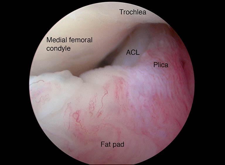 Chẩn đoán phân biệt hội chứng đau bánh chè - đùi cùng với hội chứng plica