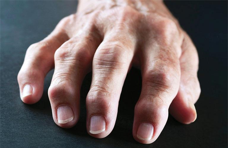 nguyên nhân hội chứng ống cổ tay