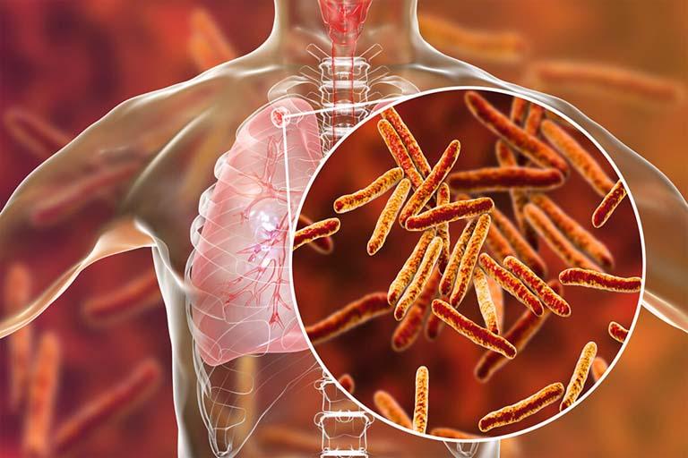 Bệnh Lao cột sống xảy ra do sự xâm nhập của vi khuẩn lao Mycobacterium tuberculosis