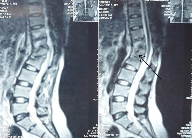 Chụp X-quang cột sống