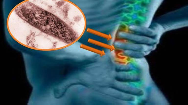 Chẩn đoán phân biệt bệnh lao cột sống với các nguyên nhân gây nhiễm trùng khác