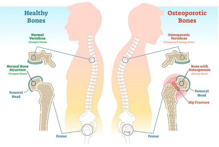 chẩn đoán bệnh loãng xương