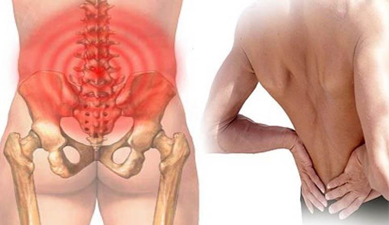 Thoái hóa cột sống làm ảnh hưởng đến phần lưng dưới
