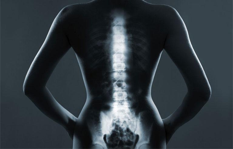 tiêu chuẩn chẩn đoán u xương