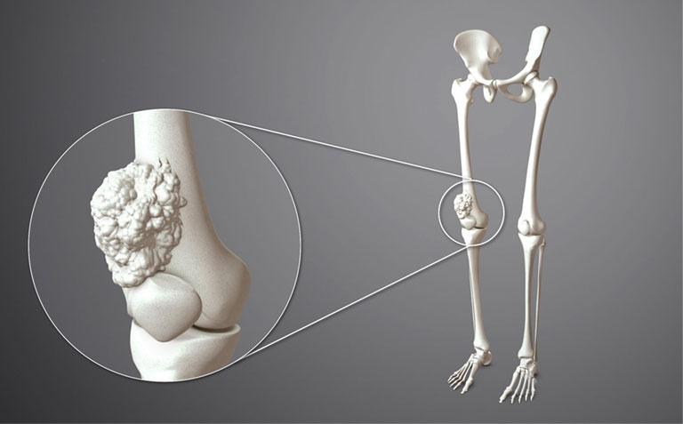 U xương là gì