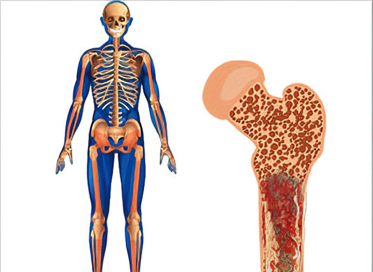 Điều trị Sarcoma xương