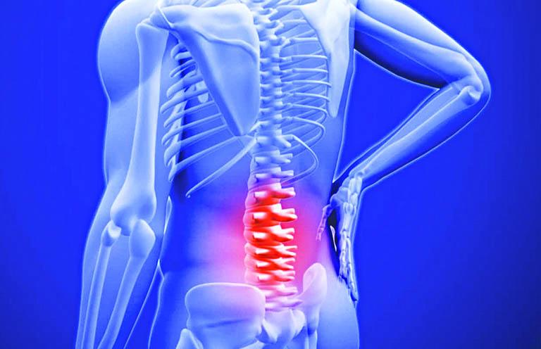 Những loại tổn thương của bệnh ung thư di căn xương