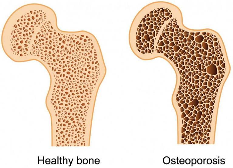 Bệnh ung thư di căn xương được chẩn đoán phân biệt với bệnh loãng xương