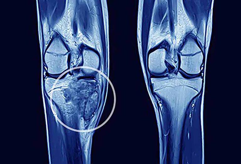 Ung thư di căn xương là tình trạng di căn ung thư từ ổ nguyên phát đến tổ chức xương