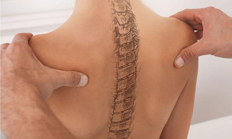 dấu hiệu cong vẹo cột sống