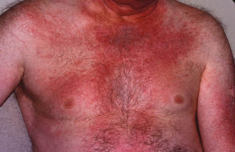 dấu hiệu viêm da cơ và viêm đa cơ
