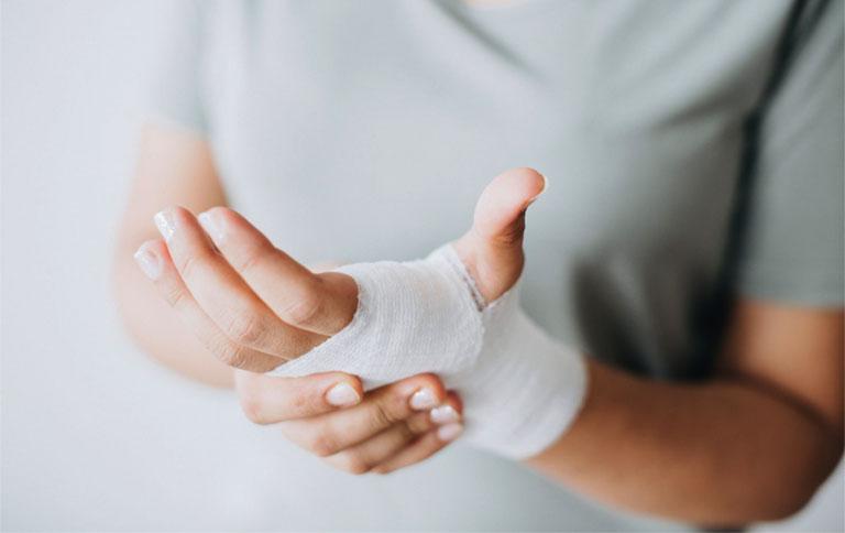 phẫu thuật viêm bao gân cổ tay