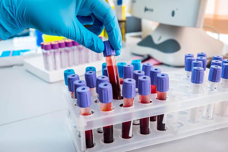 Xét nghiệm máu, chọc hút và xét nghiệm dịch ở khớp gối