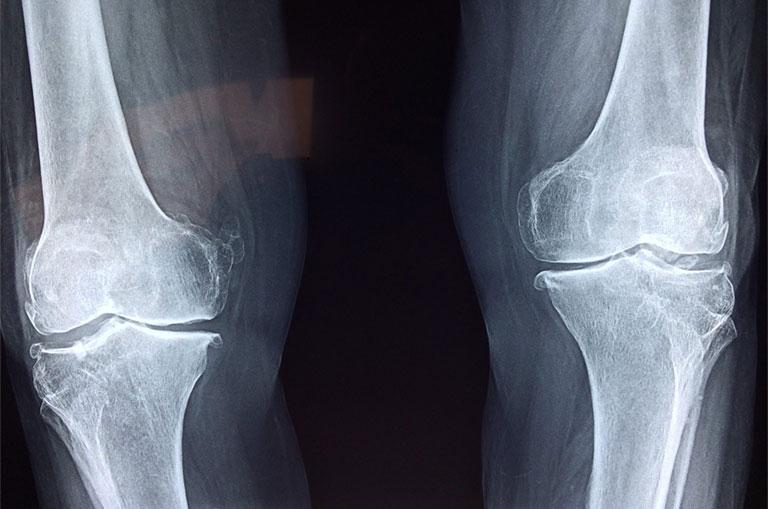 chẩn đoán hình ảnh hệ xương khớp