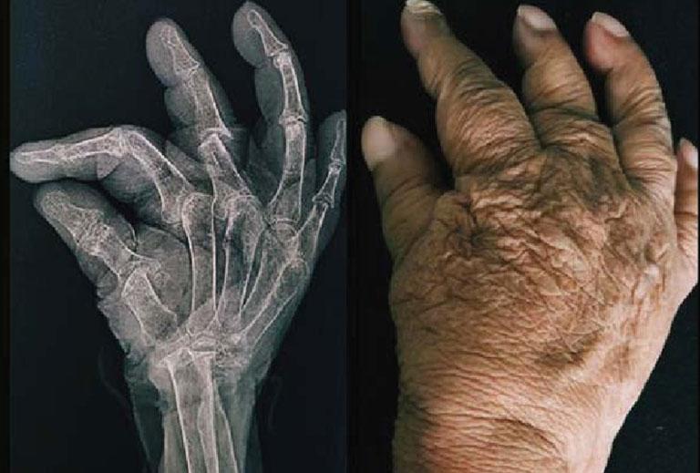bệnh viêm khớp vẩy nến là gì