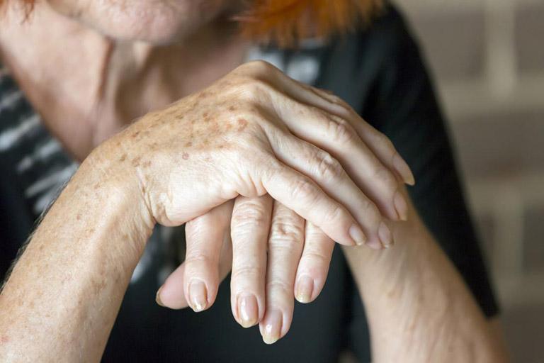 Thuốc Methotrexate được sử dụng dài hạn trong điều trị viêm khớp dạng thấp
