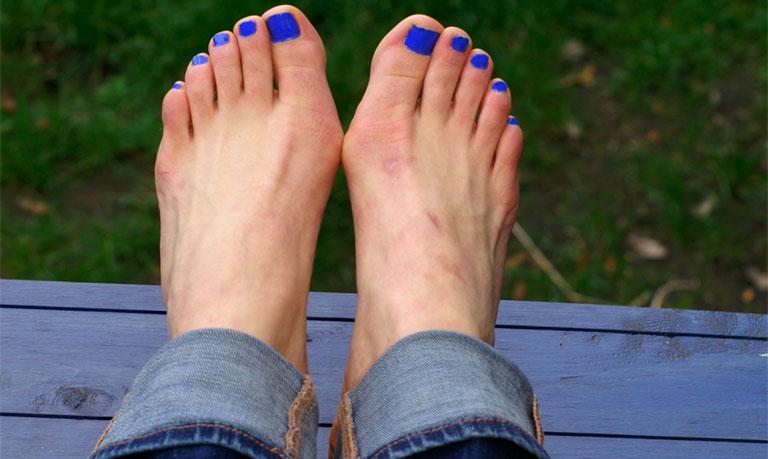 biến dạng khớp ngón chân cái