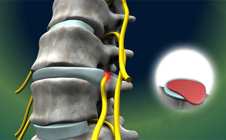 biến chứng sau phẫu thuật thoát vị đĩa đệm