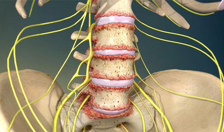 biến chứng sau mổ thoát vị đĩa đệm thắt lưng