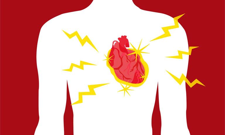 Viêm khớp dạng thấp có thể gây đột quỵ