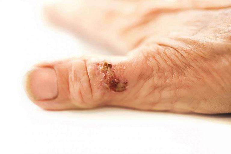 nốt thấp khớp ở bệnh viêm khớp dạng thấp