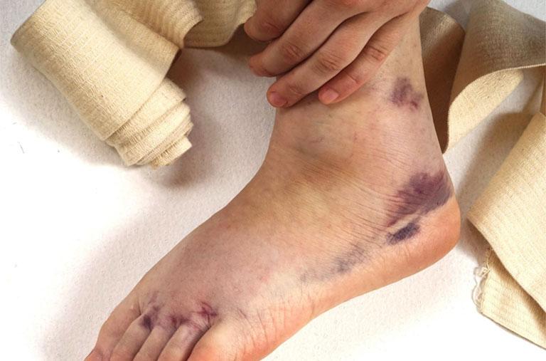 triệu chứng bong gân cổ chân