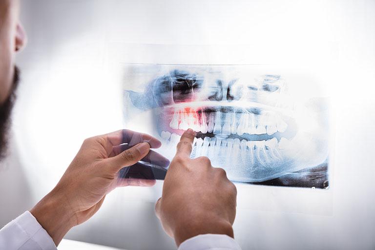 Chụp X-quang xương và răng