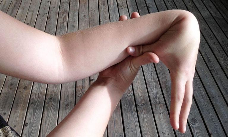 Hội chứng người dẻo