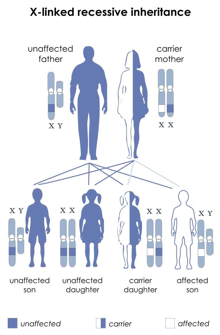 Gen nằm trên X nhiễm sắc thể và kiểu hình di truyền lặn liên kết X