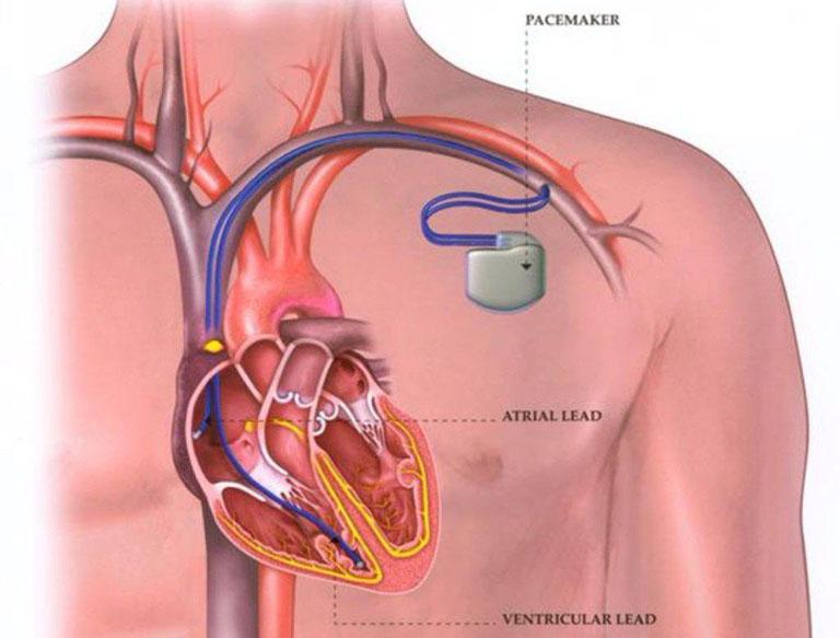 Sử dụng máy tạo nhịp tim