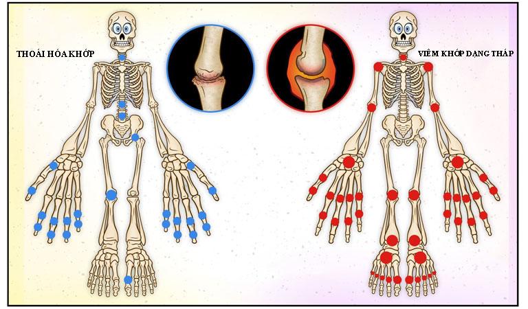 Cách phân biệt thoái hóa khớp và viêm khớp dạng thấp